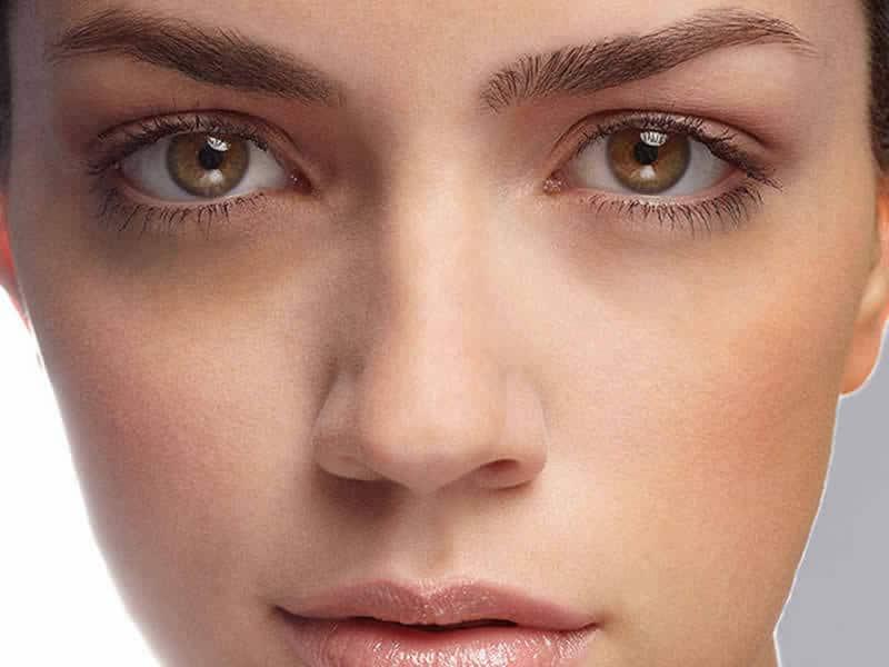 Göz altı morlukları neyin işaretidir? Sebebi bulunduktan sonra tedavisi mümkündür.