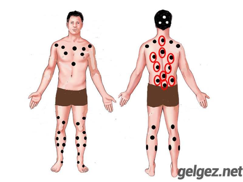 Hacamat Tedavisi yaptırmanın 6 Nedeni | Bel ve Sırt bölgesindeki ölü noktalar hacamat sonrası ile atılır.
