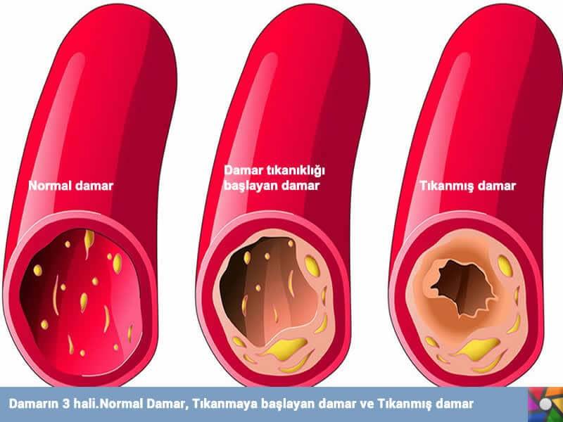 Damar sertliğini önlemede keşfedilmiş yeni bilimsel bulgular | Damarın 3 hali
