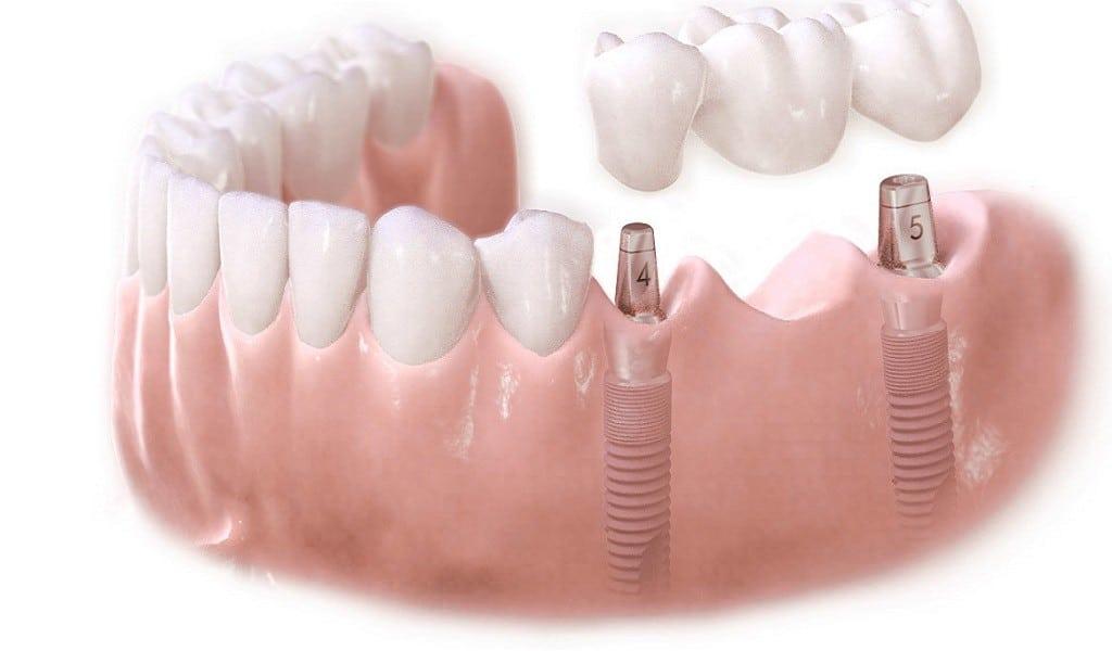 Kaybedilen dişlerin tedavisinde çeneye vida ile dişin entegre edilmesine implant denir.