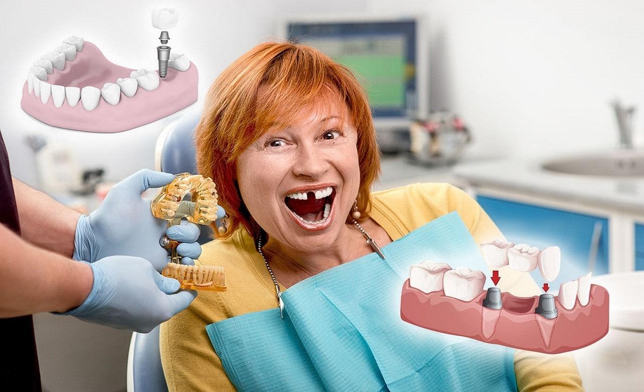 Kaybedilen dişlerin en iyi tedavi şekli implanttır.